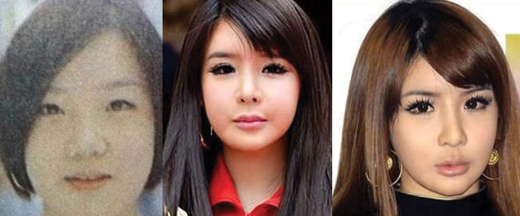Park-Bom-plastic-surgery.jpg