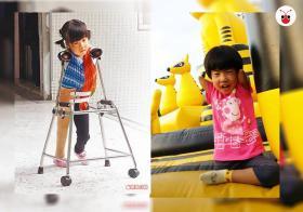 年仅五岁的徐又立在不完美中找到自信与微笑。