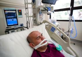 冠病19患者在加护病房内插管呼吸(示意图)